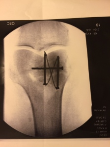 X-Ray of my father's surgically repaired knee